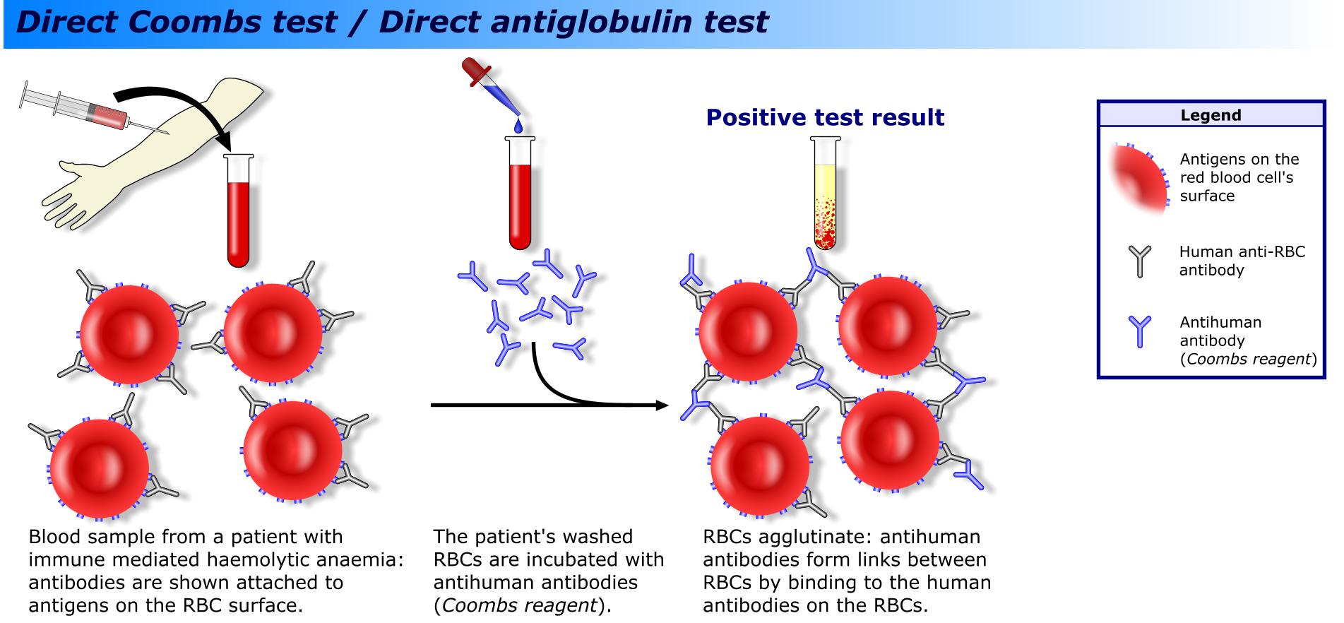 Директен антиглобулинов тест на Кумбс (Coombs)
