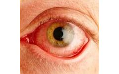 Пролетен катар-вернален конюнктивит