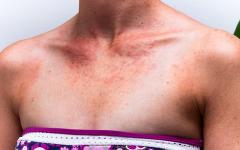 Кремът с висок слънцезащитен фактор невинаги спасява от обриви алергичните