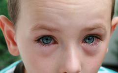 Дете с конюнктивит