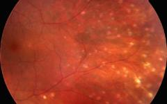 Хориоретинални лезии при саркоидоза