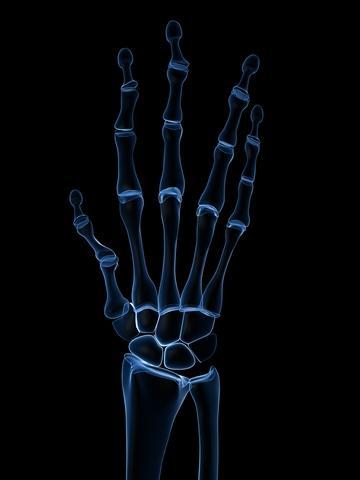 Нарушения в имунитета докарват артрит