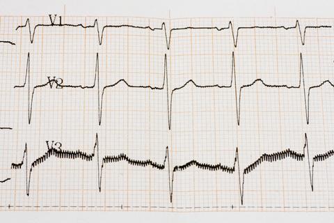 С напредването на възрастта нарушенията на сърдечния ритъм зачестяват