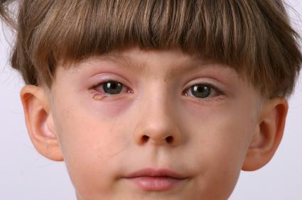 От алергичен конюнктивит страдат около 15% от населението на планетата