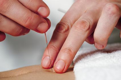 Изкуството на терапевта е да направи ефективна индивидуална комбинация от игли