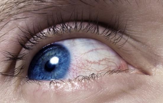 По данни на СЗО алергиите са на 4-то място сред хроничните заболявания