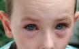 Конюнктивитът се лекува с капки или мехлем