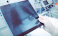 Рентгенография на белите дробове