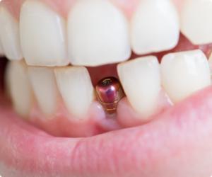 """<a href=""""/novini/zabni-dentalni-implanti"""">Зъбни (дентални) импланти</a>"""